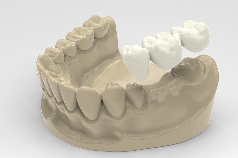 dental bridges 3d rendering