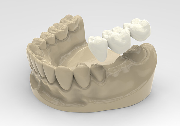 dental bridges process model
