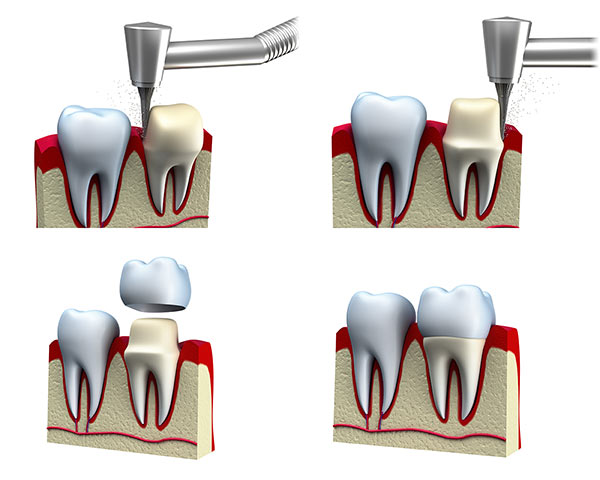 dental crowns process