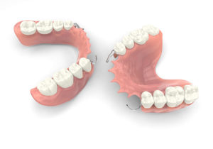 partial dentures top and bottom