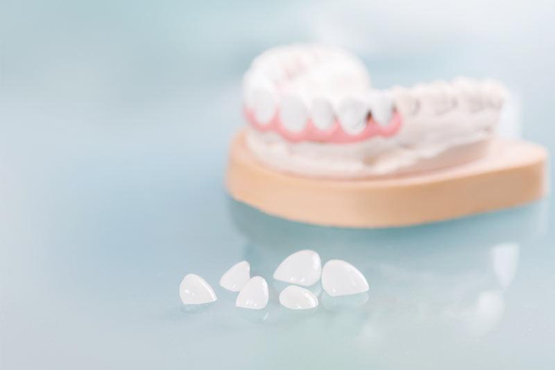 porcelain veneers on tooth cast