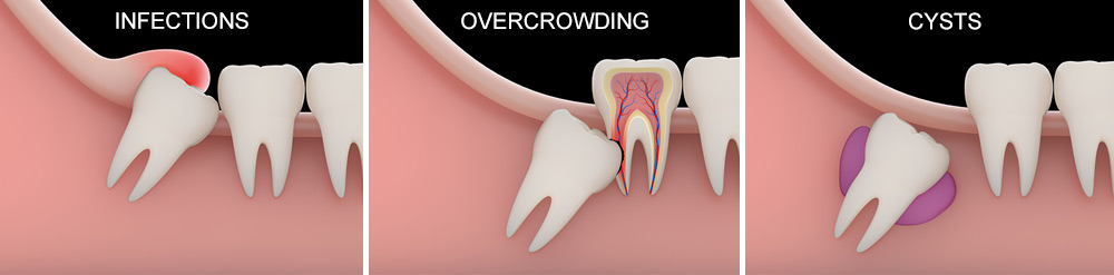 wisdom tooth infections, cysts, and overcrowding